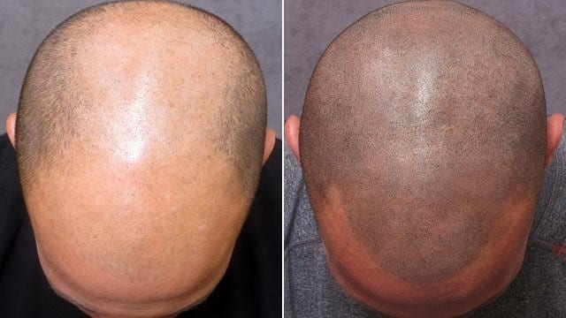 Alopecia Tattoos For Permanent Cosmetic Purposes - Complete Guide