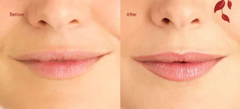 Lips_BA_1 Tattoos For Permanent Cosmetic Purposes - Complete Guide