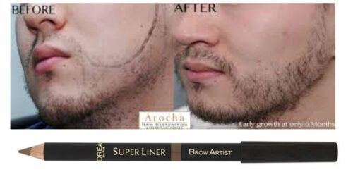 Fillers-of-patchy-beard-500x244 How to Fix Patchy Beard - 7 Tips to fix Patchy Facial Hair