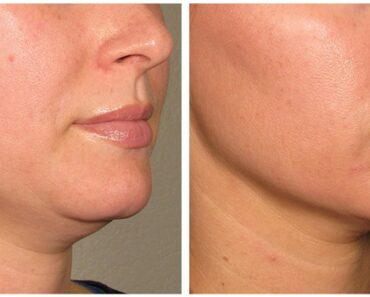 001-before_after_ultherapy_results_under-chin18